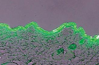 皮膚浸透性評価技術2